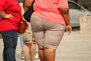 Lipedema: What is It and What Can be Done About It?