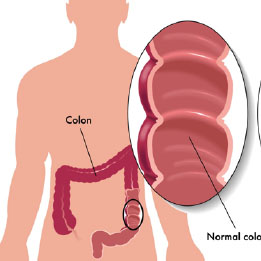 The Ins and Outs of Colon Cancer: The Who, What, When about Screening