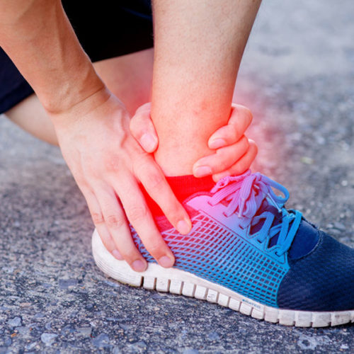 Have a Sports Injury? Try RICE