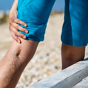Varicose Veins? When to See a Doctor