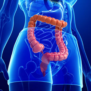 Colorectal Cancer—It's Not Just for Older Adults