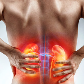 Suffer from Kidney Stones?